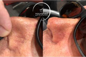 Patient very happy with resolution of spider veins on his nose