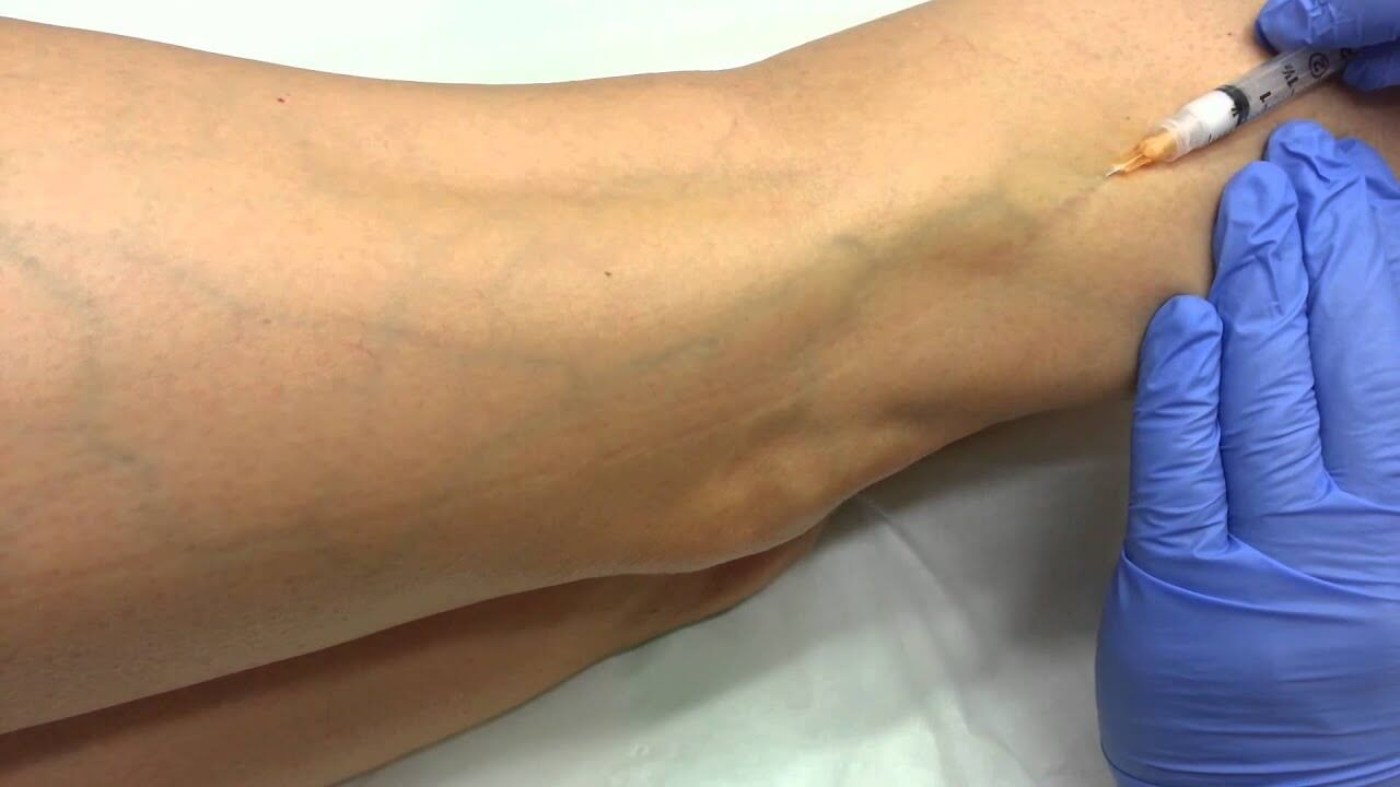 varicose vein treatment with asclera