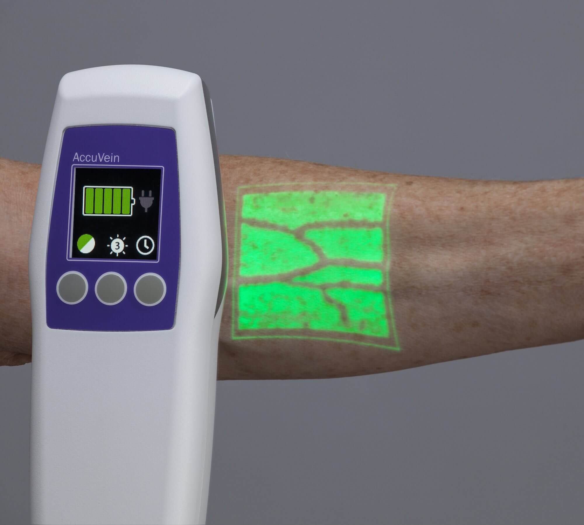 Accuvein, How Does AccuVein Vein Finder Work?