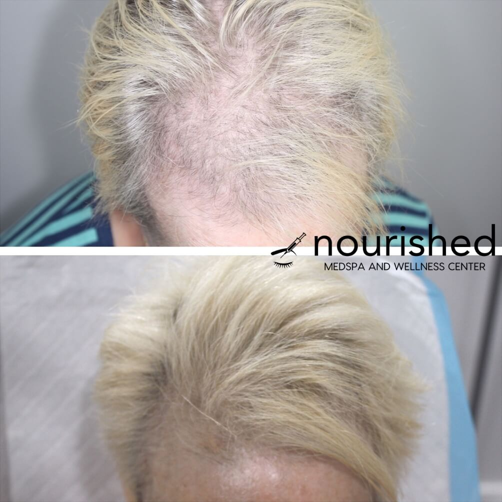 Hair restoration, Nourished Grow PDO Hair Restoration