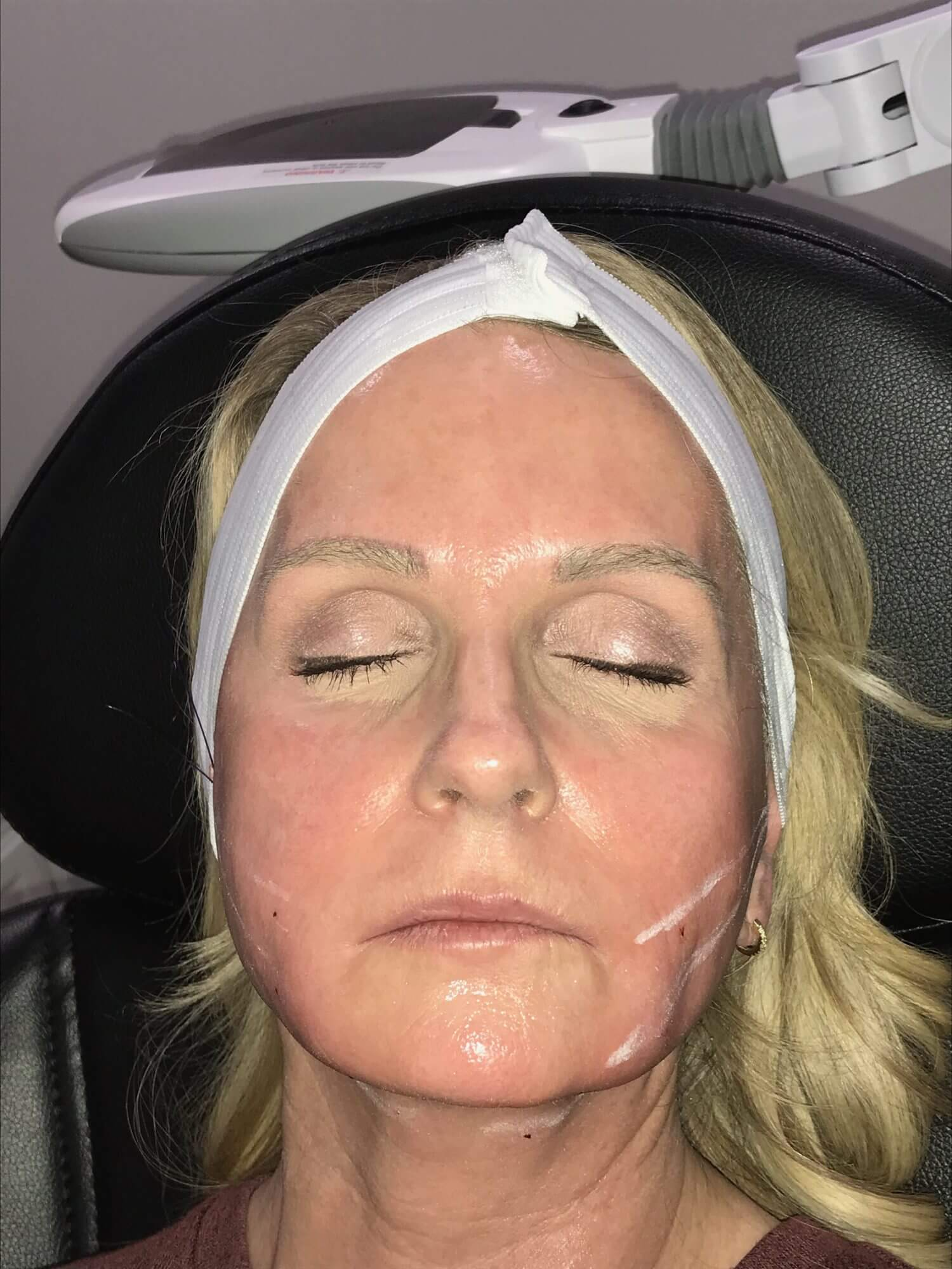 threadlifting, Nonsurgical Face Lift