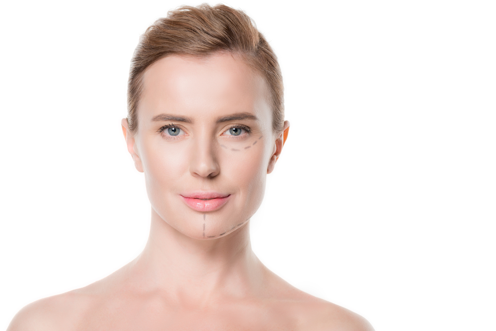 Nonsurgical Facelift, Is a Nonsurgical Facelift Right for You? 8 Things to Expect From a Thread Lift Treatment