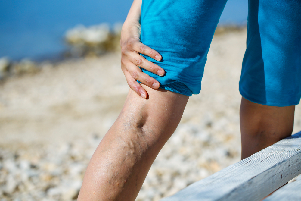 sclerotherapy, How Can You Get Rid of Spider Veins? 8 Benefits of Sclerotherapy