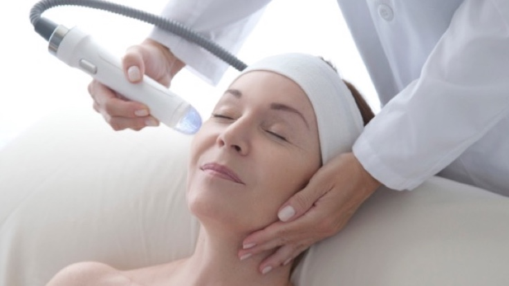What is RF Microneedling?